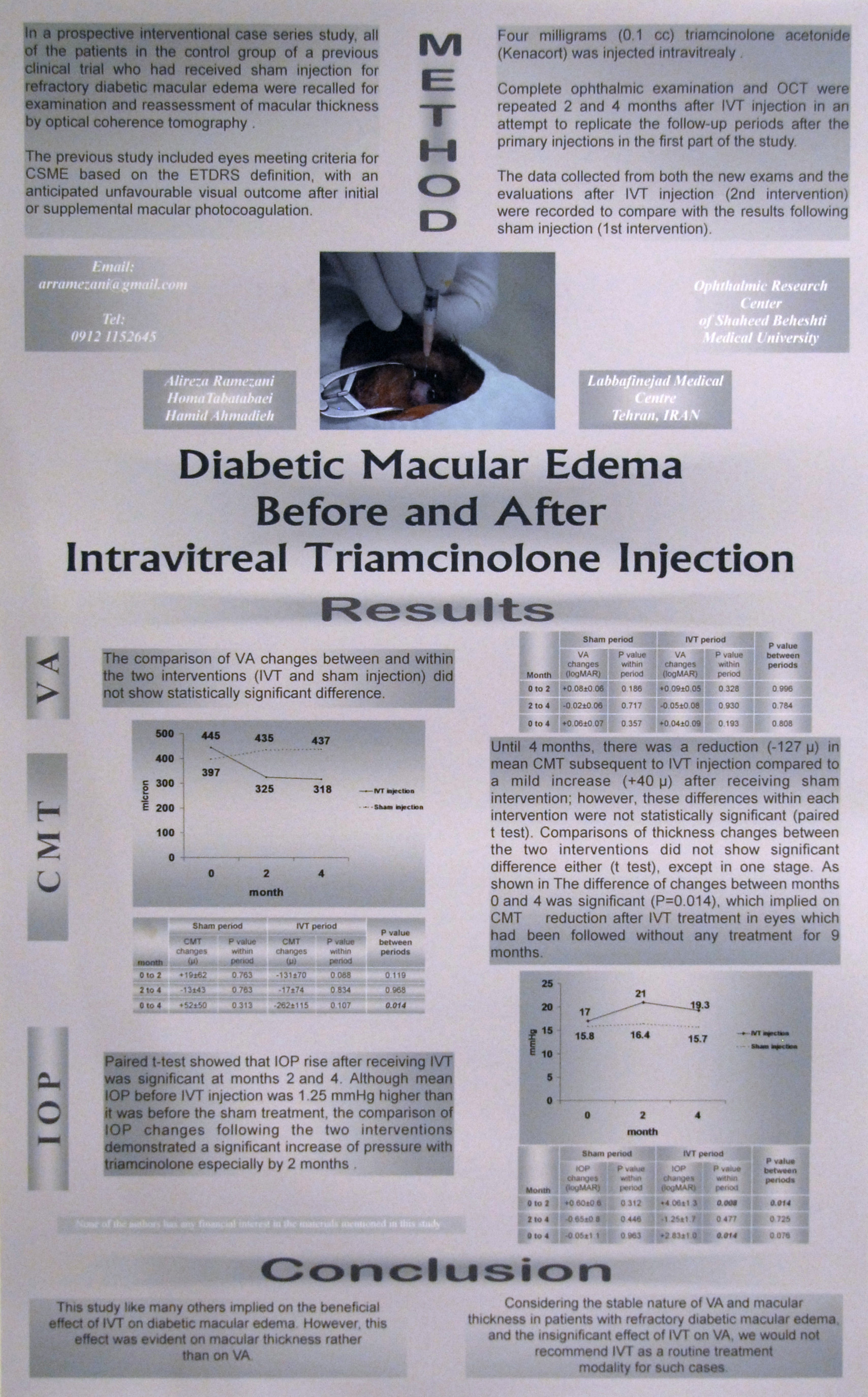 intravitreal triamcinolone acetonide for refractory diabetic macular edema itsw
