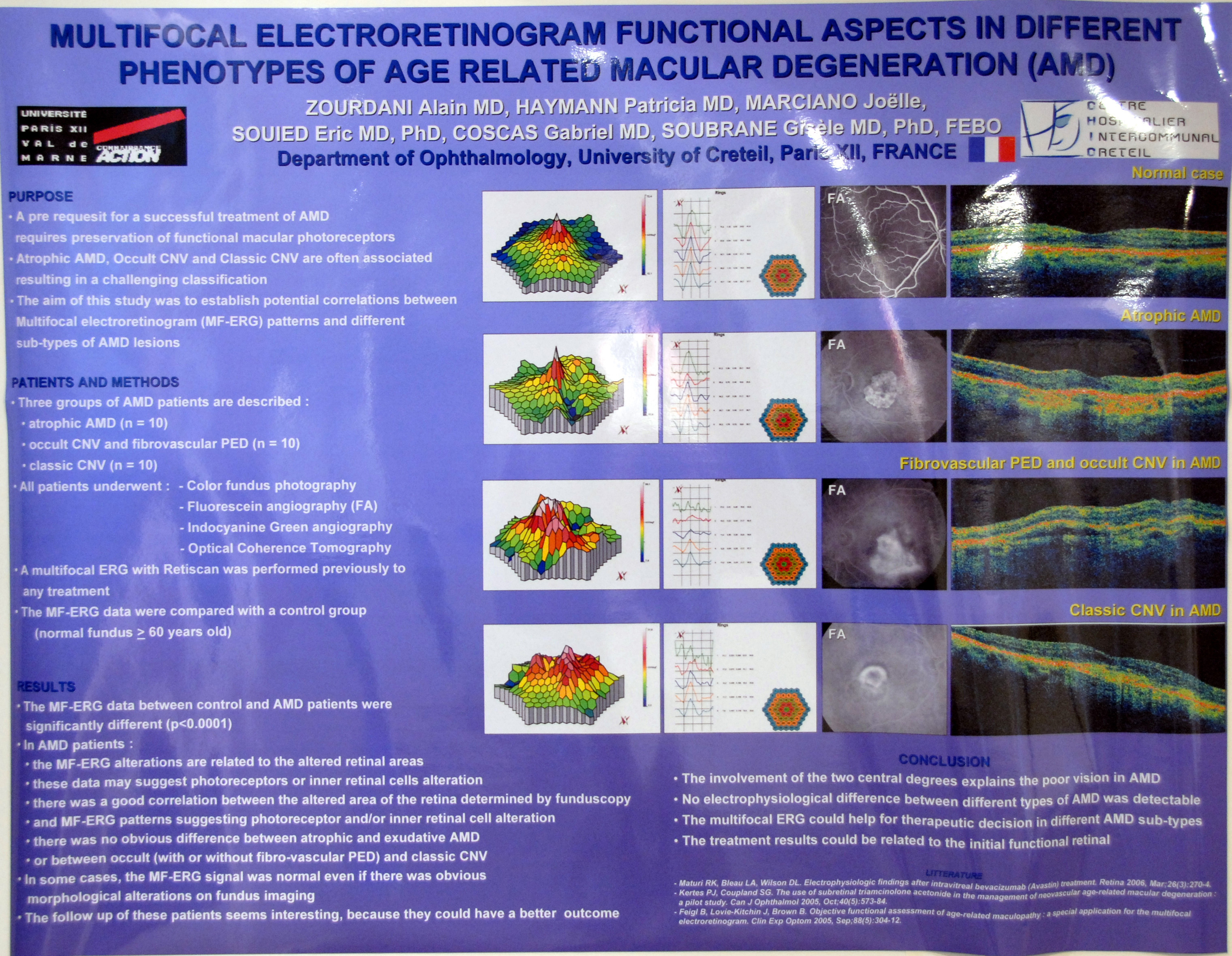 - Multifocal-Electroretinogram-Functional-Aspects-in-Different- Phenotypes-of-Age-Related-Macular-Degeneration