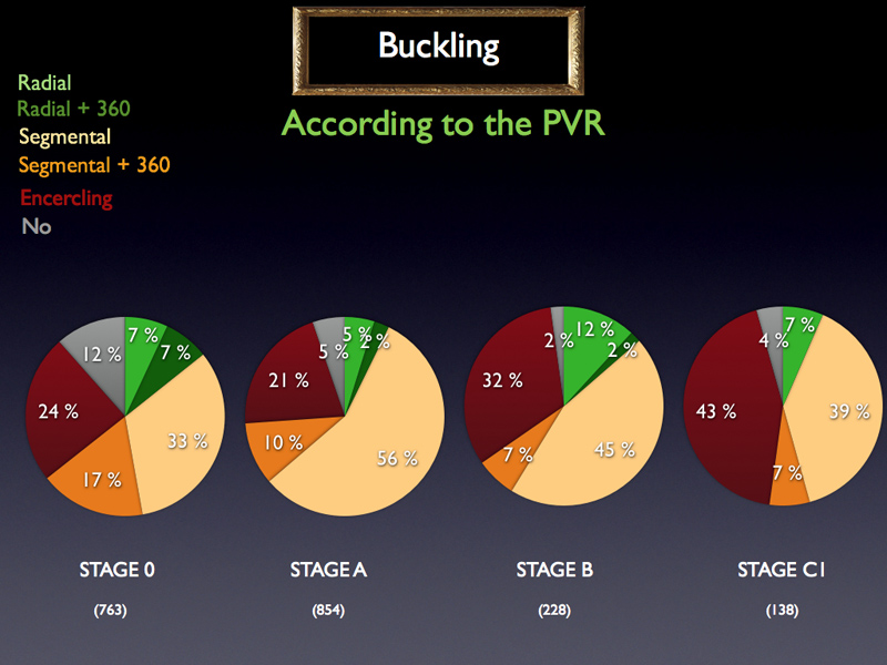 It can be noticed that the buckling technique varies according to the stage of PVR. More cases without buckle for stage 0.