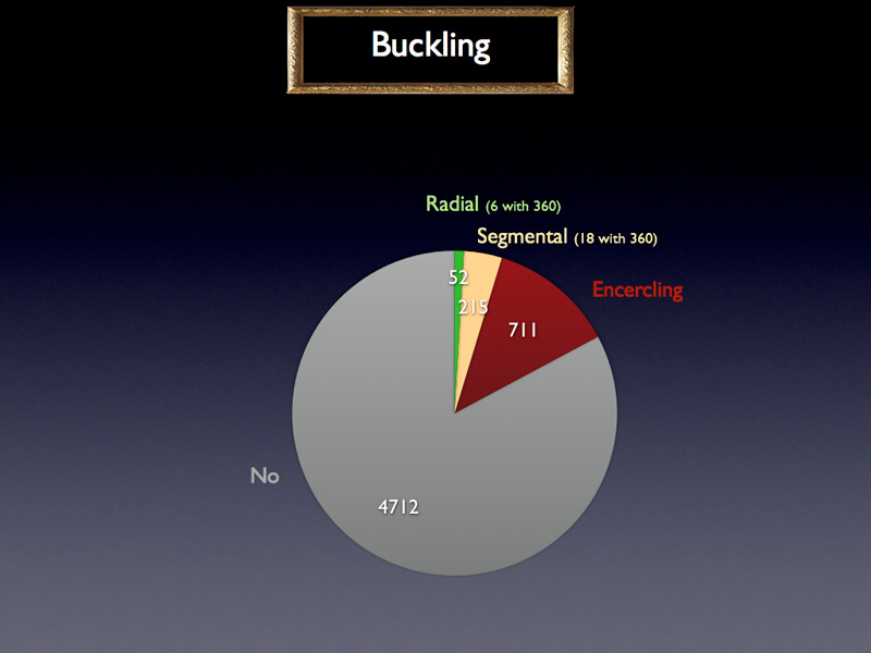 Finally, we can see that a majority of surgeons do not perform any buckling when they perform a vitrectomy.