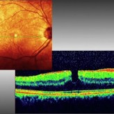 Non-Full Thickness Macular Holes. A Closer Look!
