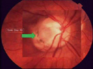 Origin of Subretinal Fluid in Optic Disc Pit Maculopathy: Beta-2 Transferrin Analysis
