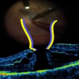 The Inverted ILM Flap Technique for Large Macular Holes