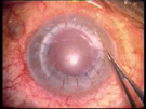 The Use of New Surgical Strategies in Dealing with Ocular Trauma