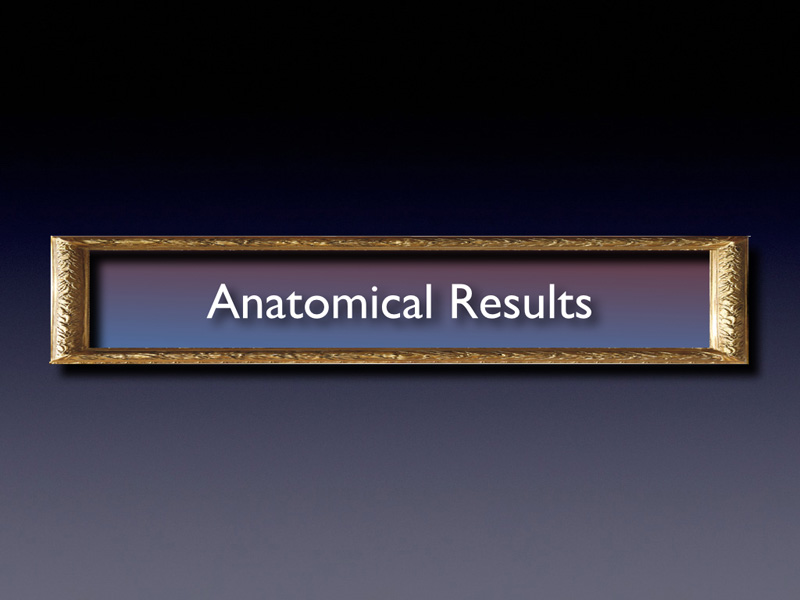The anatomical result after the first treatment was the resolution of the sub and intra retinal fluid.