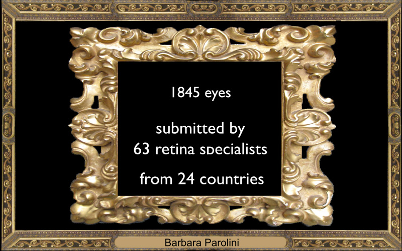 We collected 1,845 cases of CSCR, sent by 63 retina specialists from 24 countries.