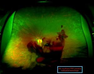 Insufficient Laser, Preretinal Hemorrhage Ihab Saad Othman
