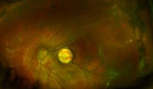 Macular Hole in RD PDR Barbara Parolini