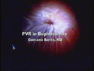 Primary PVR in Buphthalmos